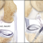 What is an ACL Injury?