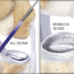 Postoperative Care After an ACL or Meniscus Repair