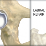 What is a Labral Tear?