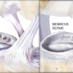 What is an Meniscus Tear?