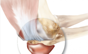 ElbowBursitis