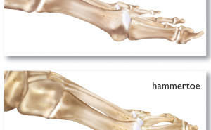 HammerToes