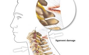 ligament damage